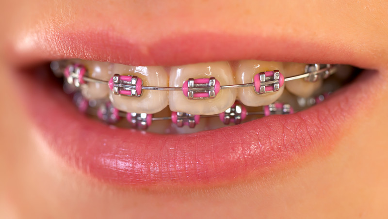 emergency orthodontic treatment