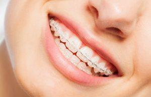 alternatives to metal braces