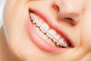 alternatives to metal braces