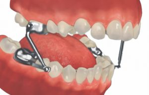 The Herbst Appliance and Jaw Alignment
