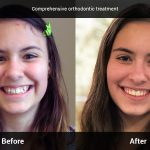 comprehensive orthodontic treatment