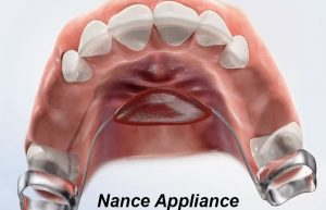 Nance appliance