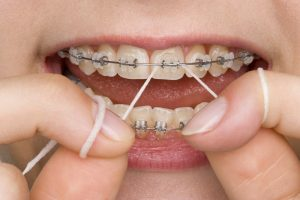 hygiene tips for wearing braces