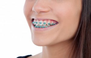 Can You Get Cavities With Orthodontic Braces