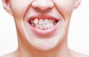 What Causes Crooked Teeth