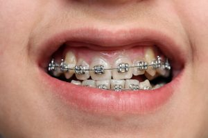 phase two orthodontics