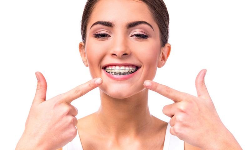 woman wearing dental braces for jaw realignment